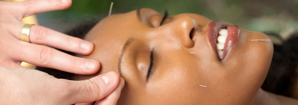 acupuncture-new-york-city-nyc