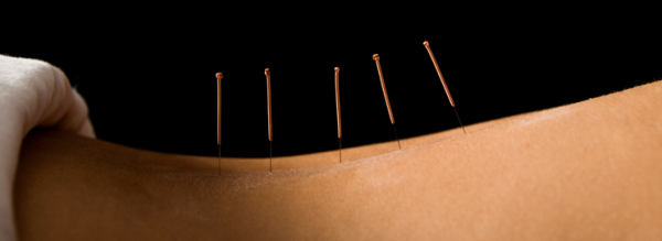 final_acupunctureslider